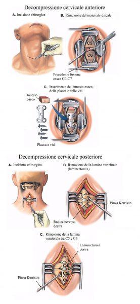 Ernia cervicale,intervento chirurgico
