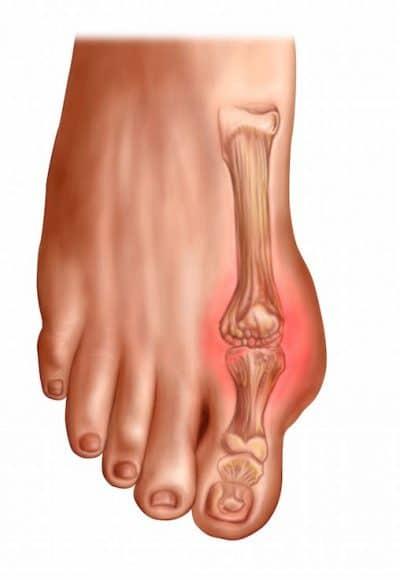 Alluce rigido,artrosi