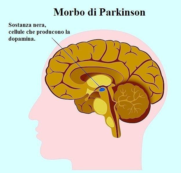 Morbo di Parkinson,sostanza nigra,cervello,movimento