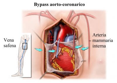 bypass coronarico,cuore,infarto