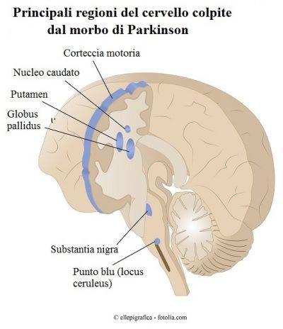 cervello-parkinson