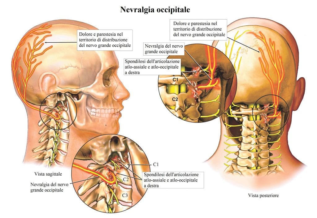 Dolore alla nuca,mal di testa,cervicale