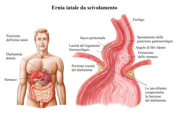 Ernia iatale,scivolamento,stomaco,diaframma