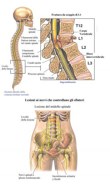 Frattura di L1, da scoppio,lesione midollo spinale,incontinenza
