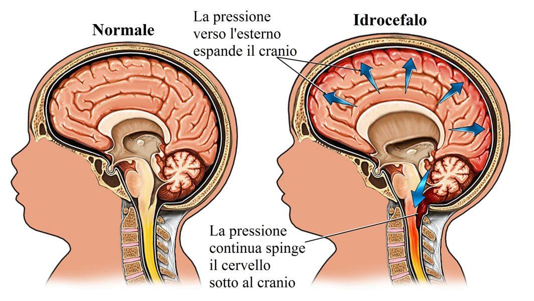Idrocefalo,spina bifida