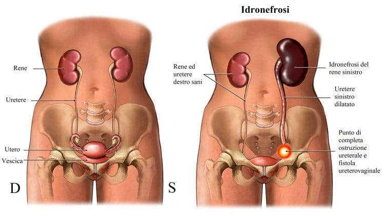 Idronefrosi,rene gonfio,ostruzione,uretere