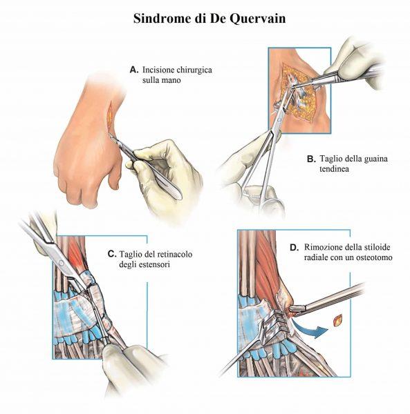 Intervento per la sindrome di De Quervain