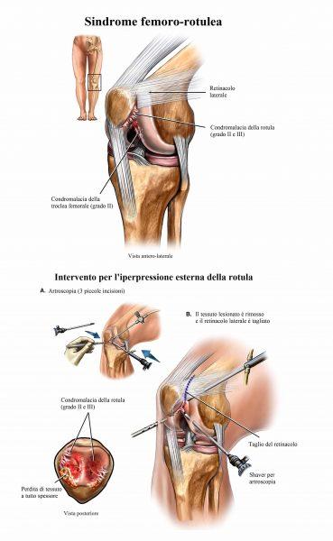 intervento chirurgico,sindrome femoro rotulea,iperpressione esterna