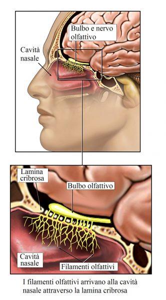 Shear Injury to the Olfactory Nerves (Cranial Nerve I)
