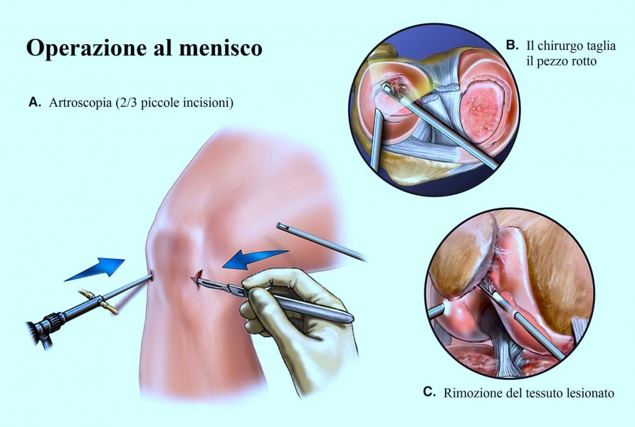 Dolore al polpaccio sinistro o destro: le cause principali
