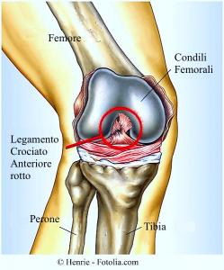 rottura-legamenti-ginocchio