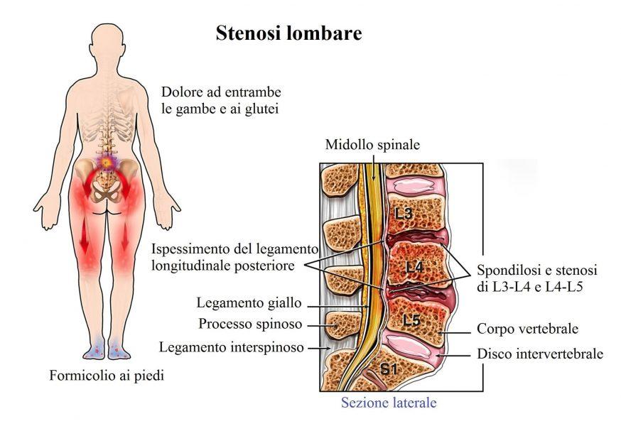 Stenosi lombare,lombare,schiena bassa,dolore,gambe