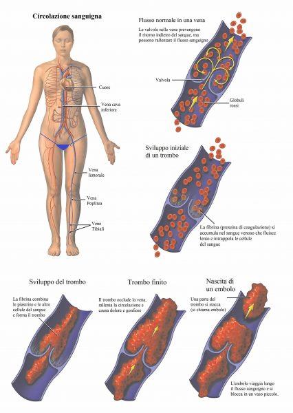 Trombosi venosa,coagulo,embolia polmonare