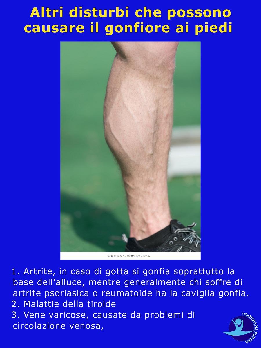 disturbi che possono causare il gonfiore ai piedi