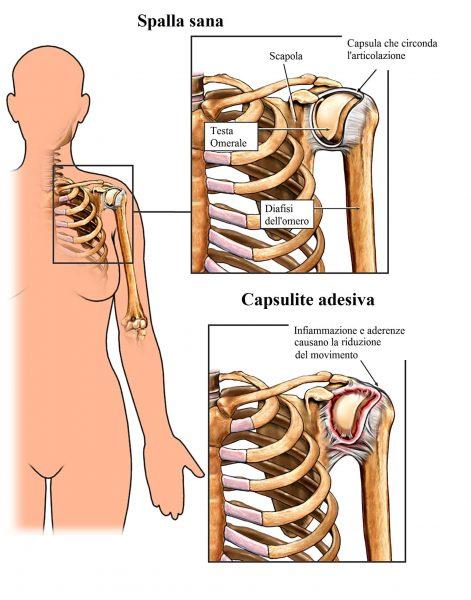 Capsulite,spalla