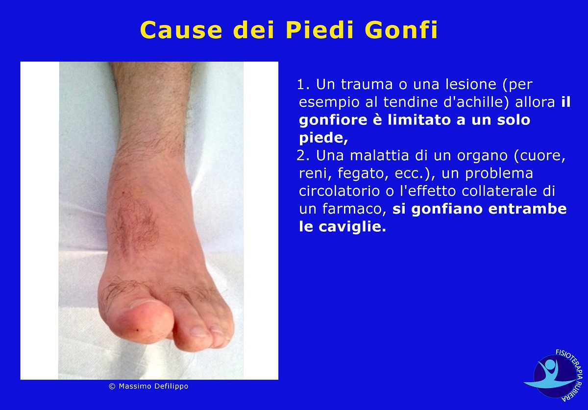 Cause-dei-Piedi-Gonfi