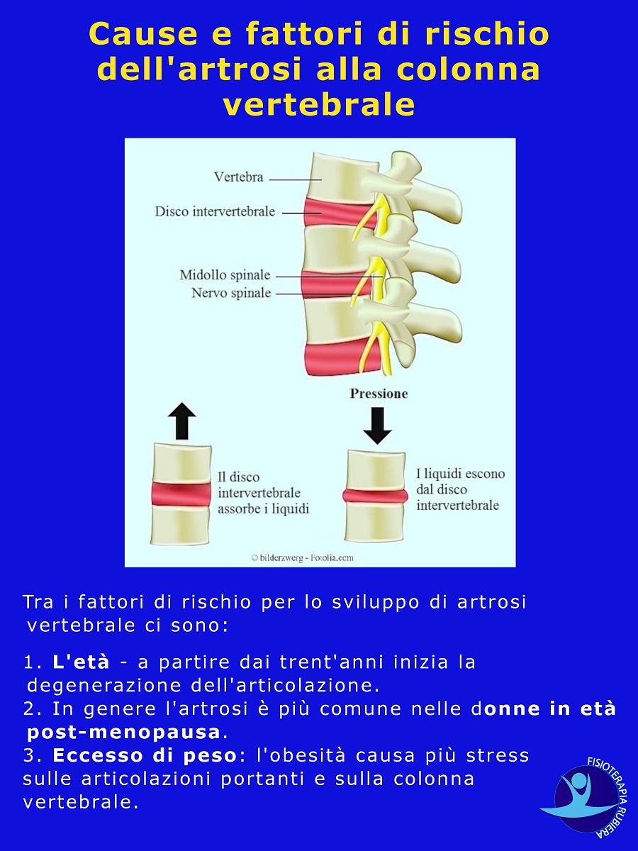 fattori-di-rischio-dellartrosi-alla-colonna-vertebrale