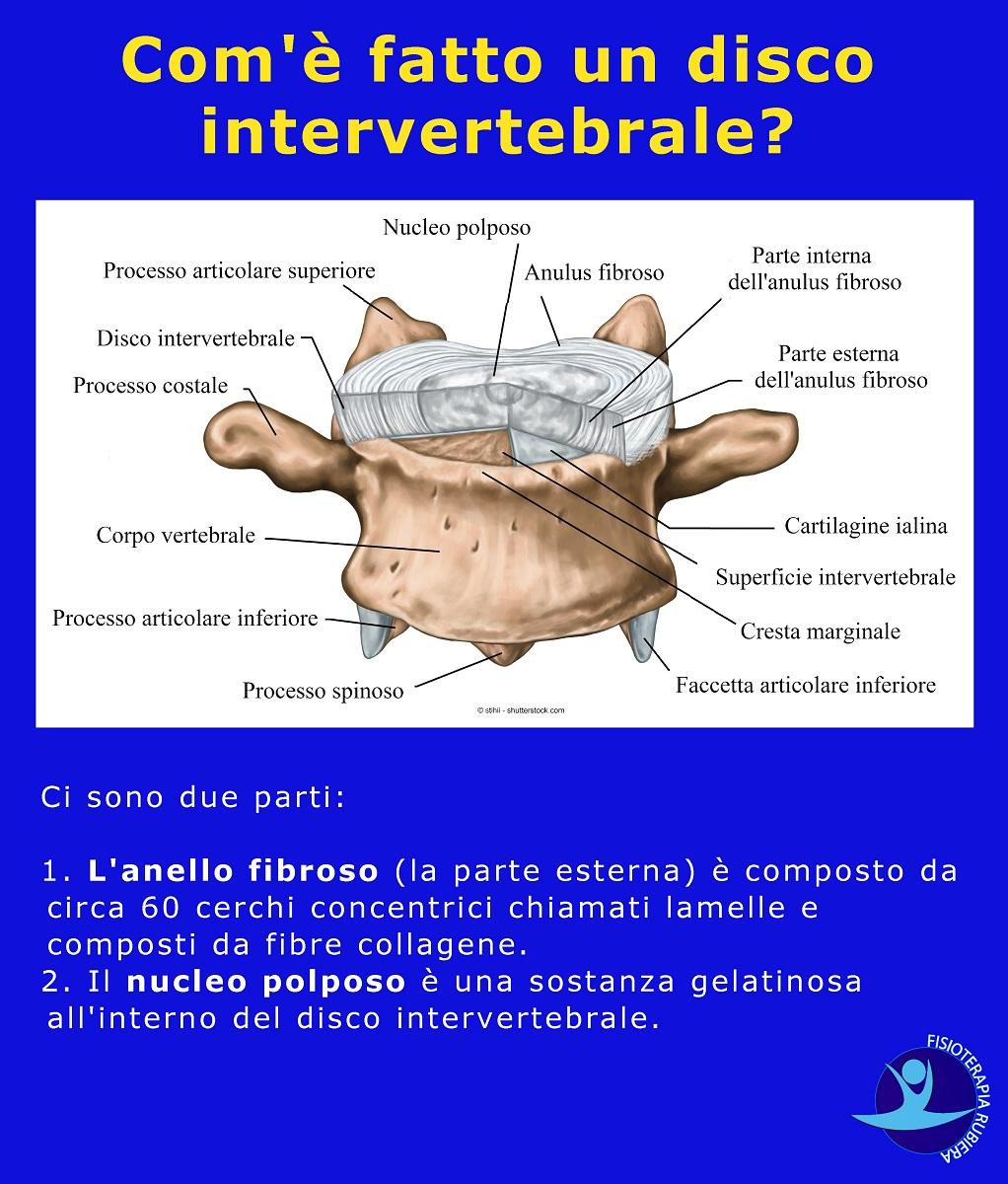 disco-intervertebrale