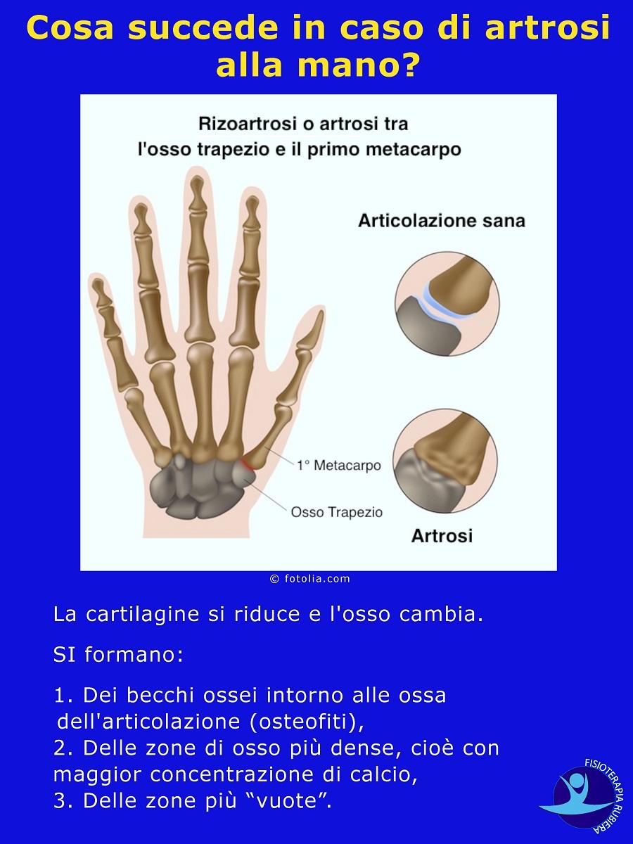 Cosa succede in caso di artrosi alla mano