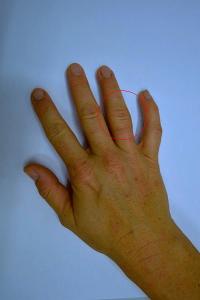 Dita delle mani gonfie e doloranti: quali sono le cause e come rimediare?
