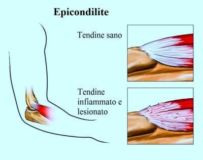 Epicondilite (gomito del tennista): sintomi, cura e rimedi