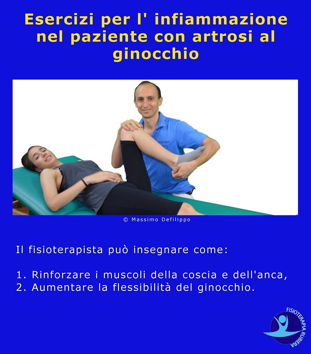 Esercizi per l' infiammazione nel paziente con artrosi al ginocchio