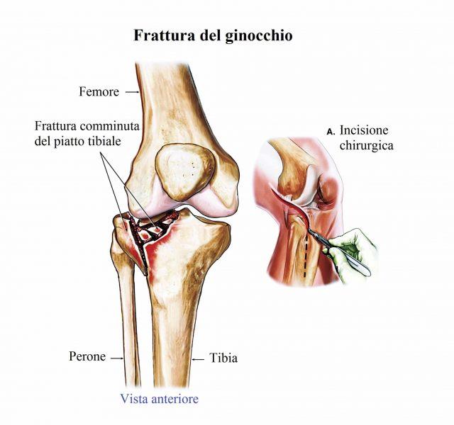 Frattura del piatto tibiale,ginocchio