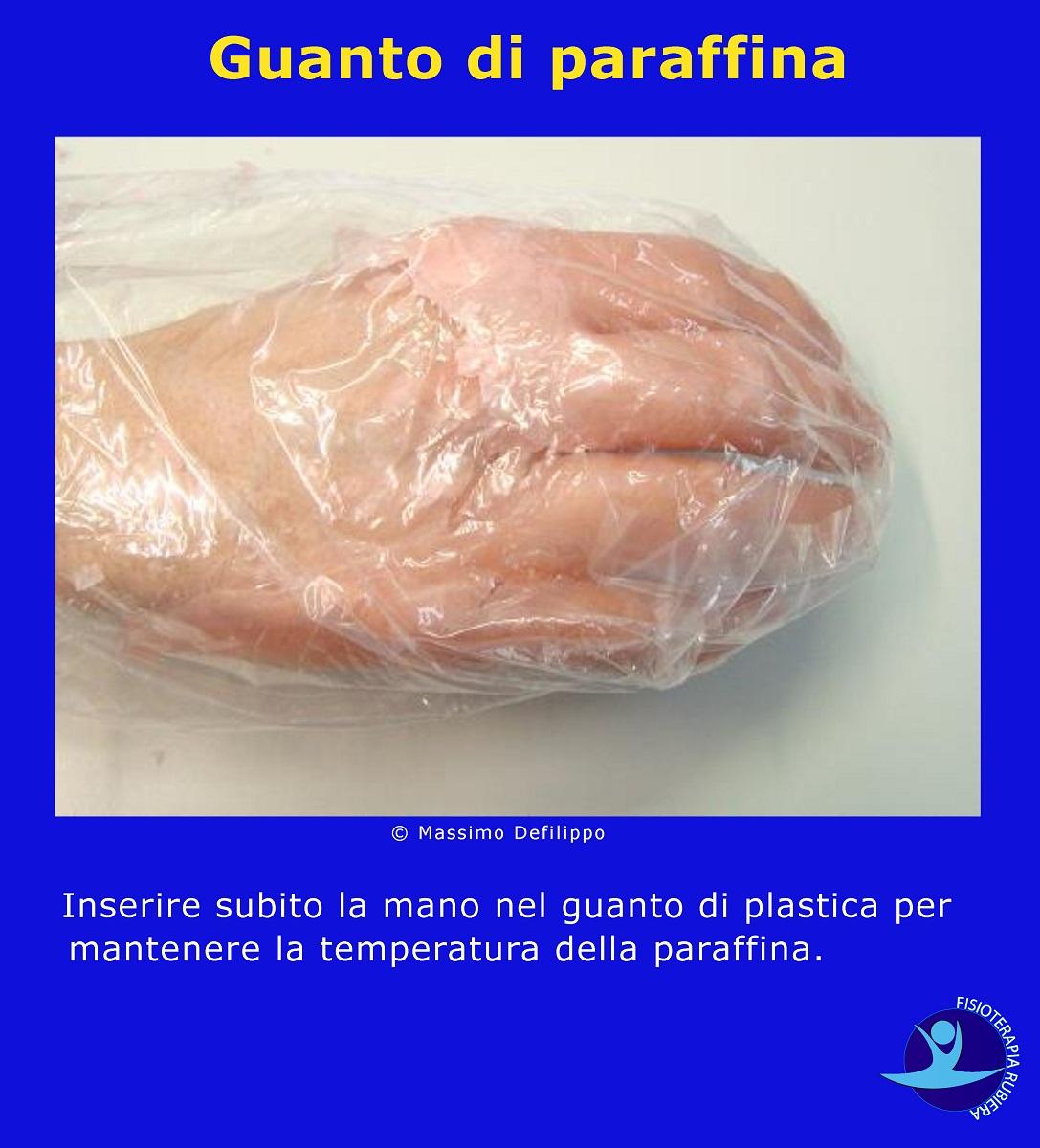 Guanto-di-paraffina