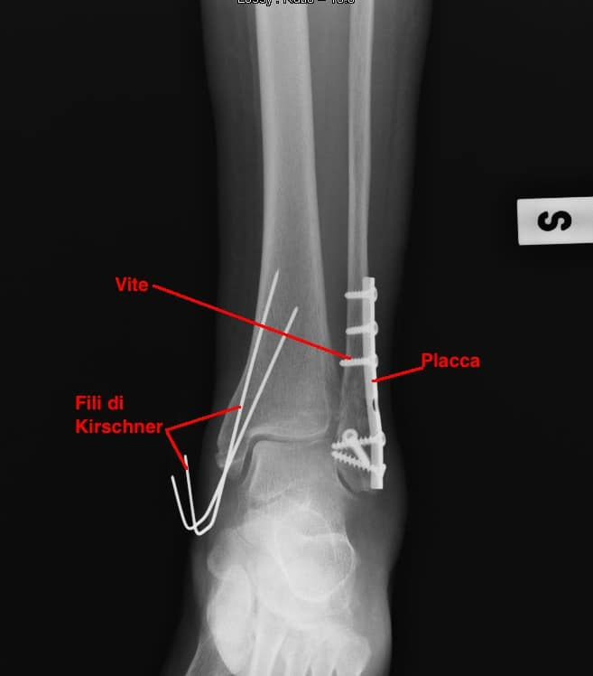 Intervento chirurgico per la frattura del malleolo esterno