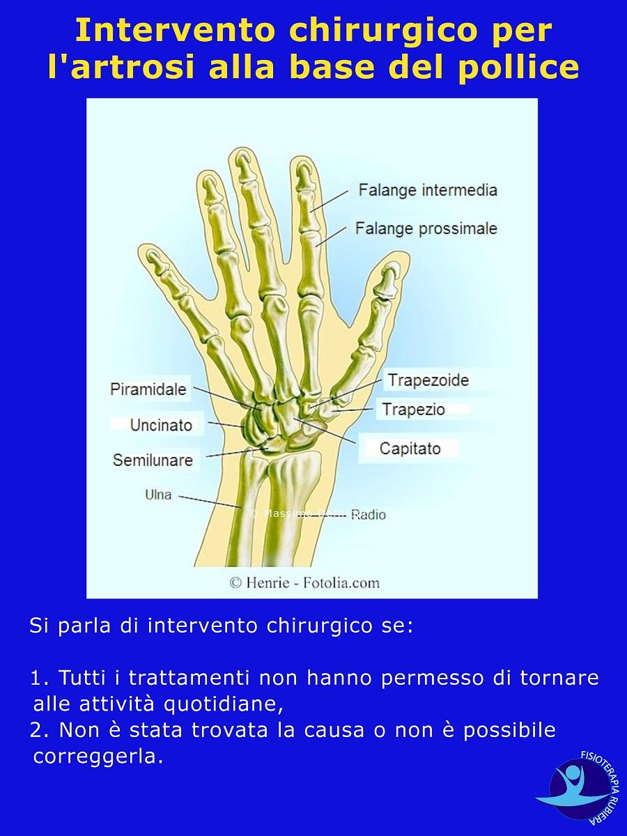 Intervento-chirurgico-rizoartrosi