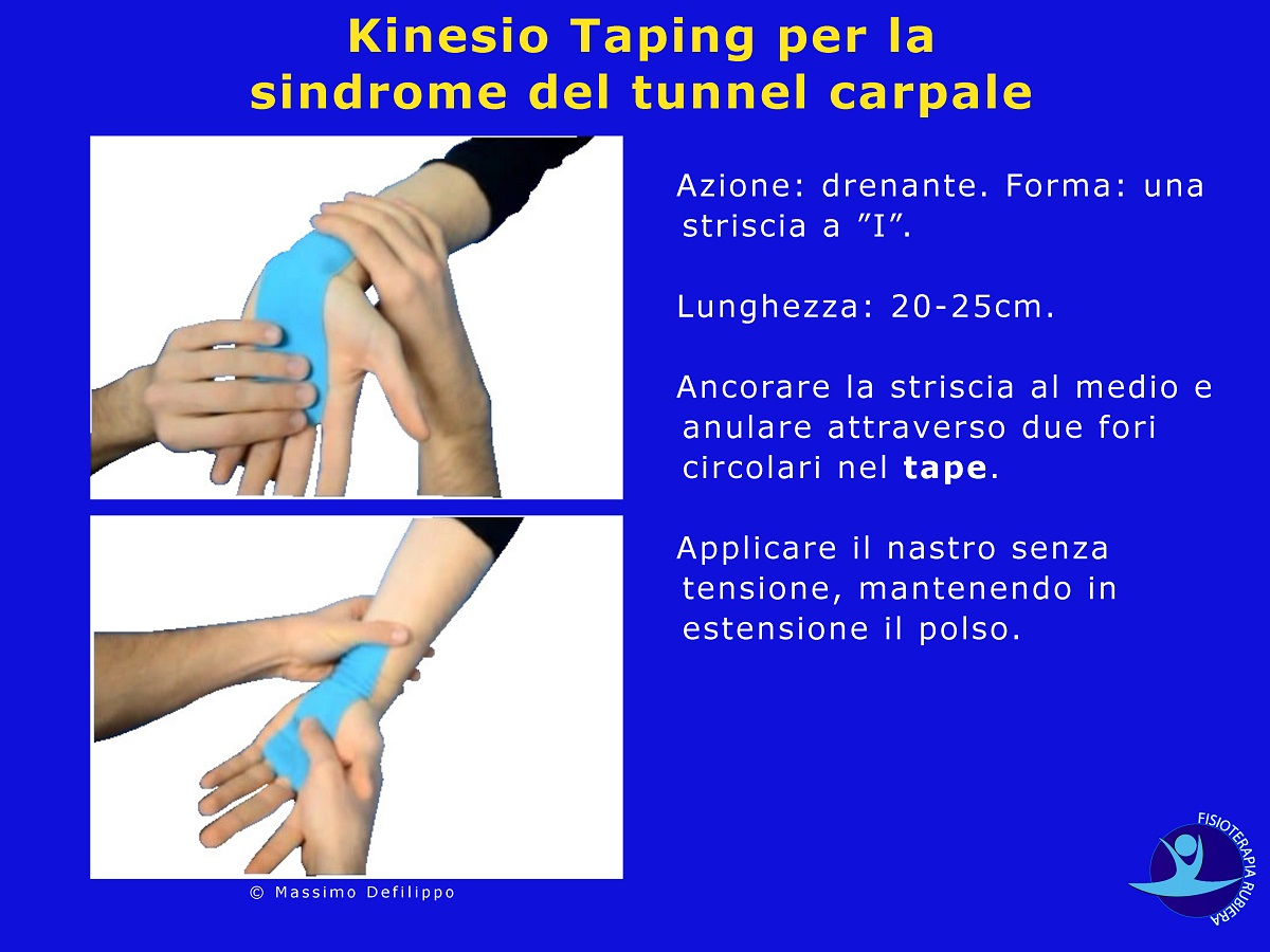 Kinesio Taping sindrome tunnel carpale