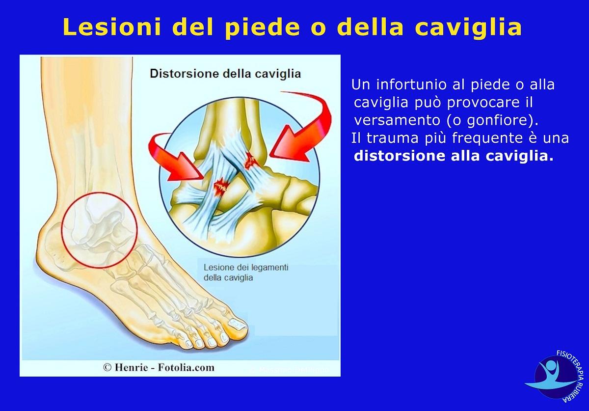 Lesioni del piede o della caviglia