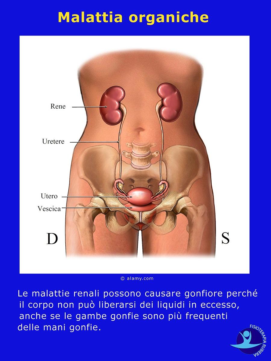 Malattia reni