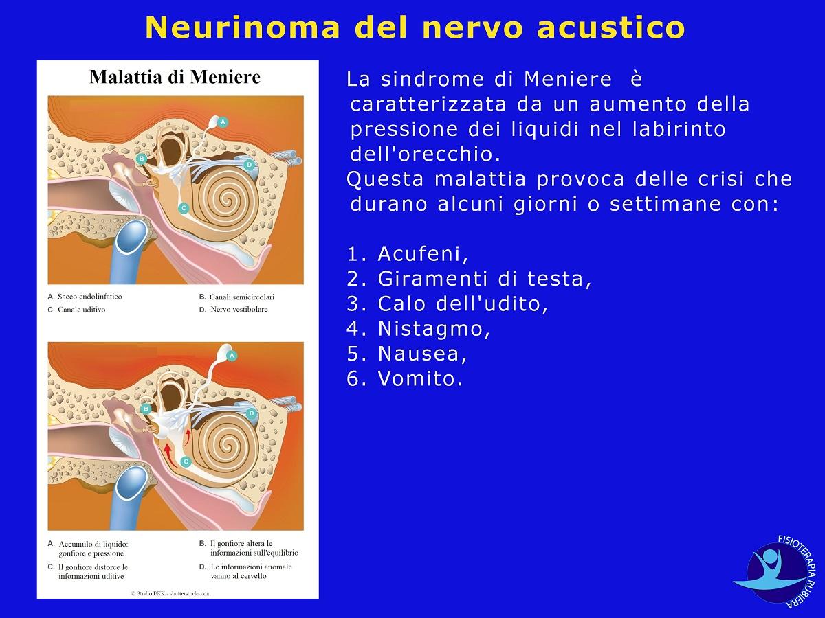 Neurinoma-del-nervo-acustico
