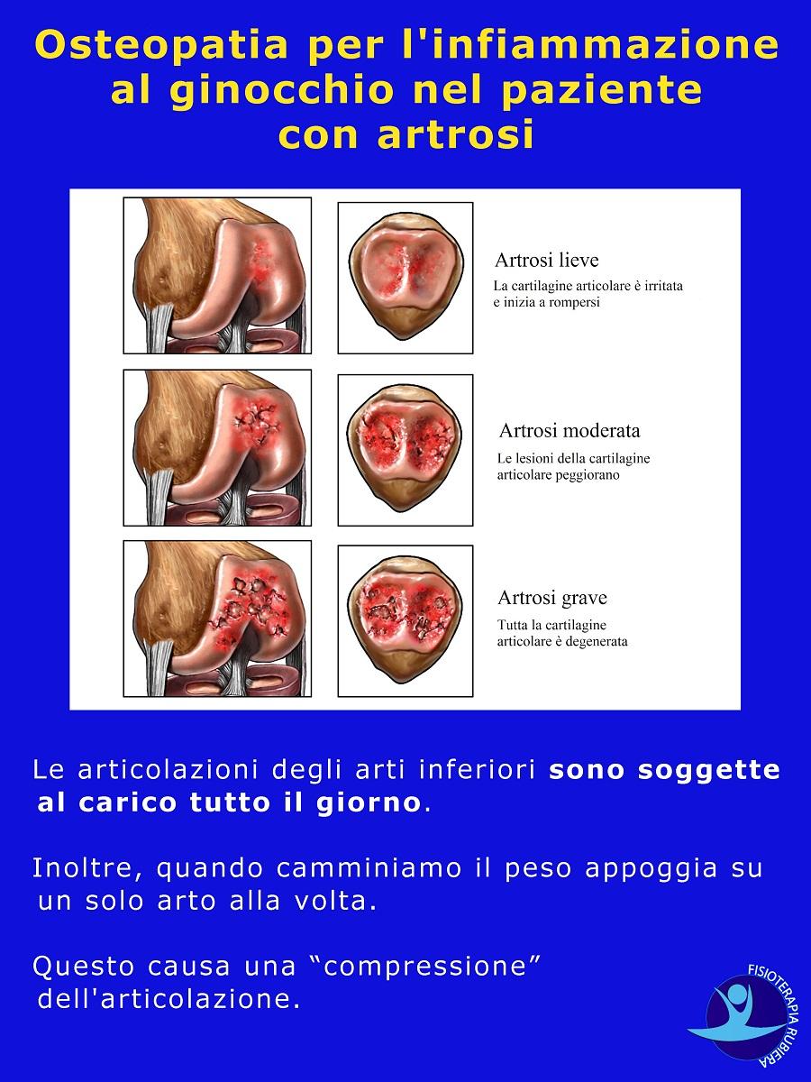 Osteopatia per l'infiammazione al ginocchio