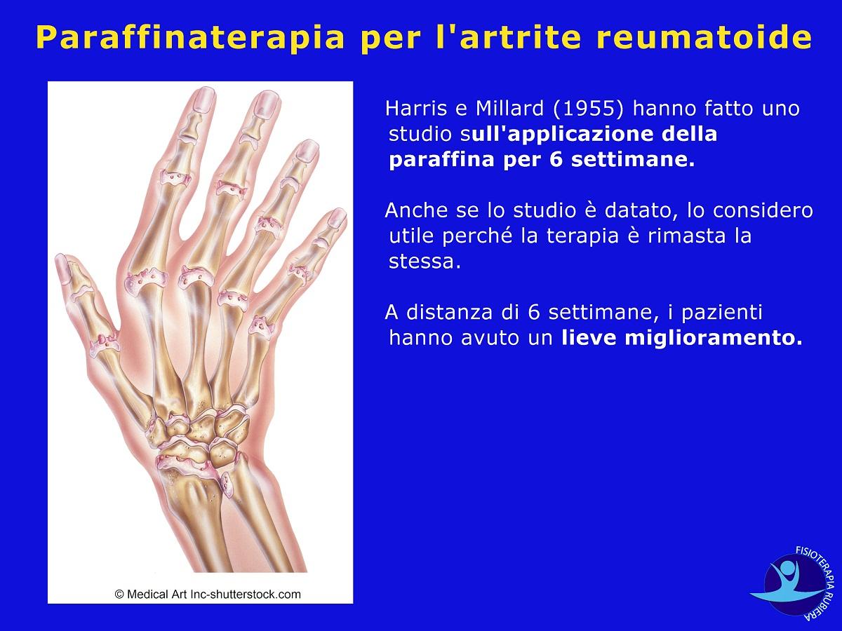 Paraffinaterapia per l'artrite reumatoide