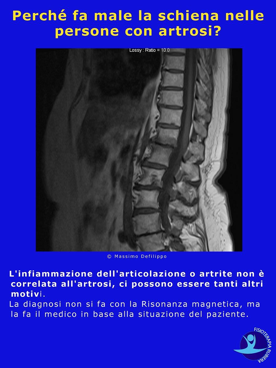 fa male la schiena nelle persone con artrosi