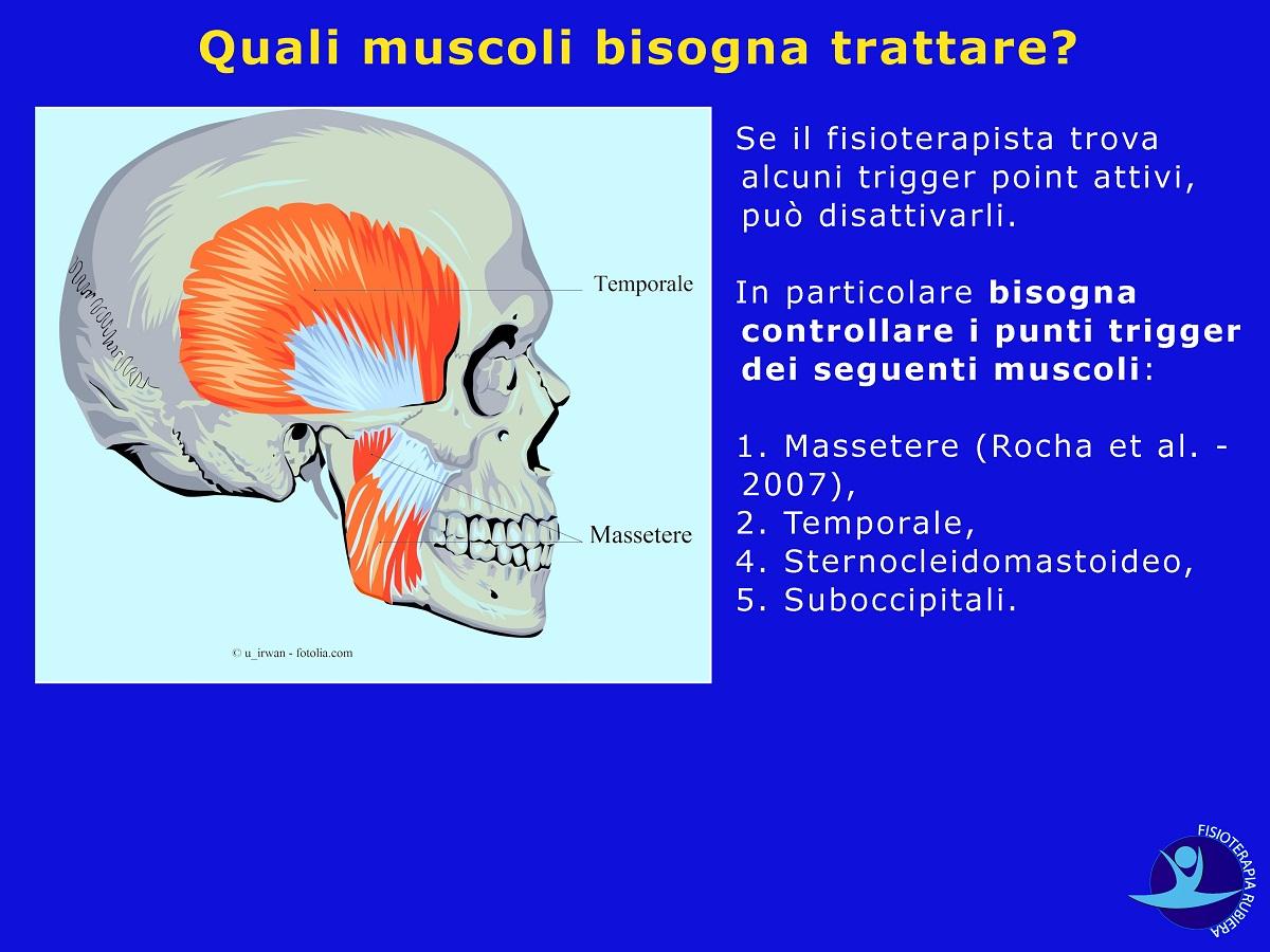 muscolo-massetere-temporale