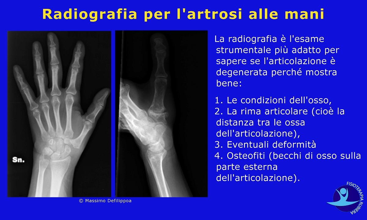 Radiografia per l'artrosi alle mani