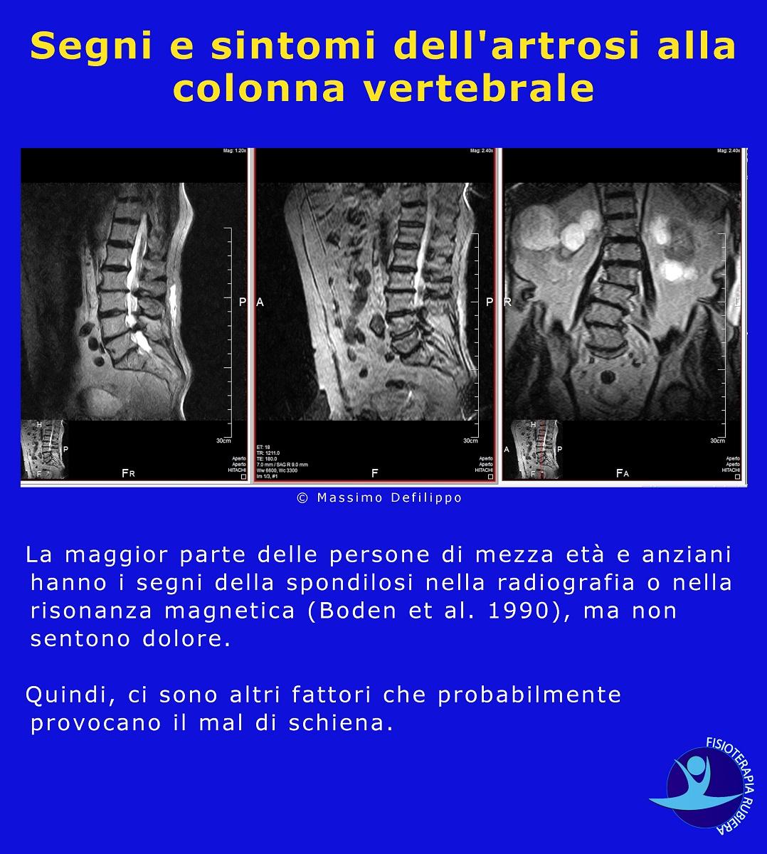 sintomi dell'artrosi alla colonna vertebrale