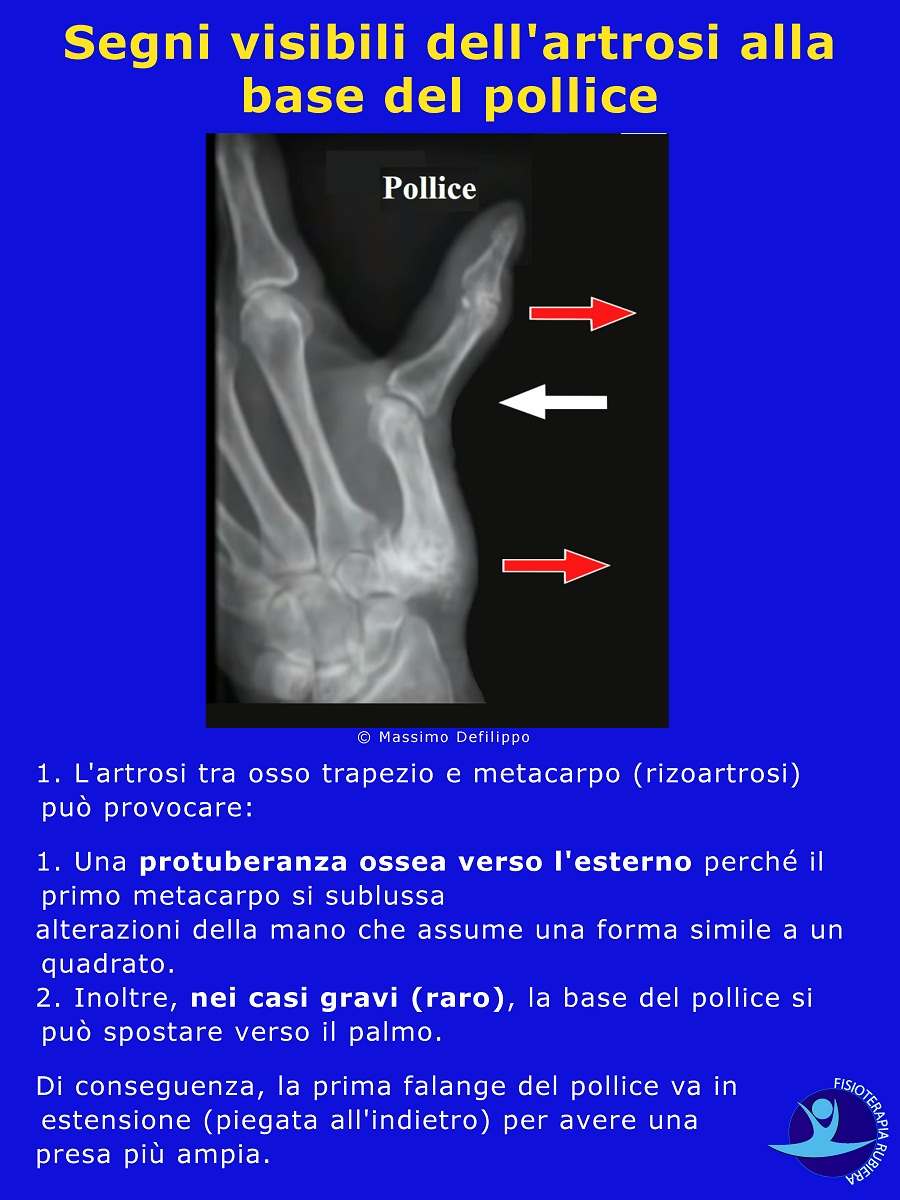 Segni artrosi base del pollice