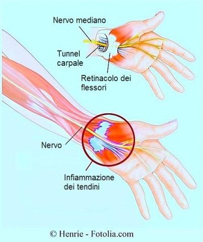 Tunnel carpale,sindrome,formicolio,nervo mediano