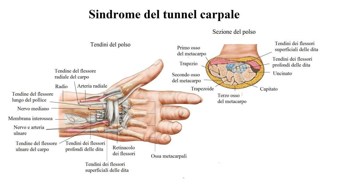 Dolore al polso,sindrome del tunnel carpale