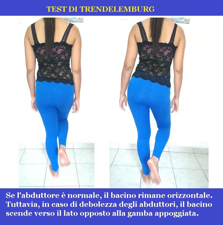 TEST-DI-trendelemburg