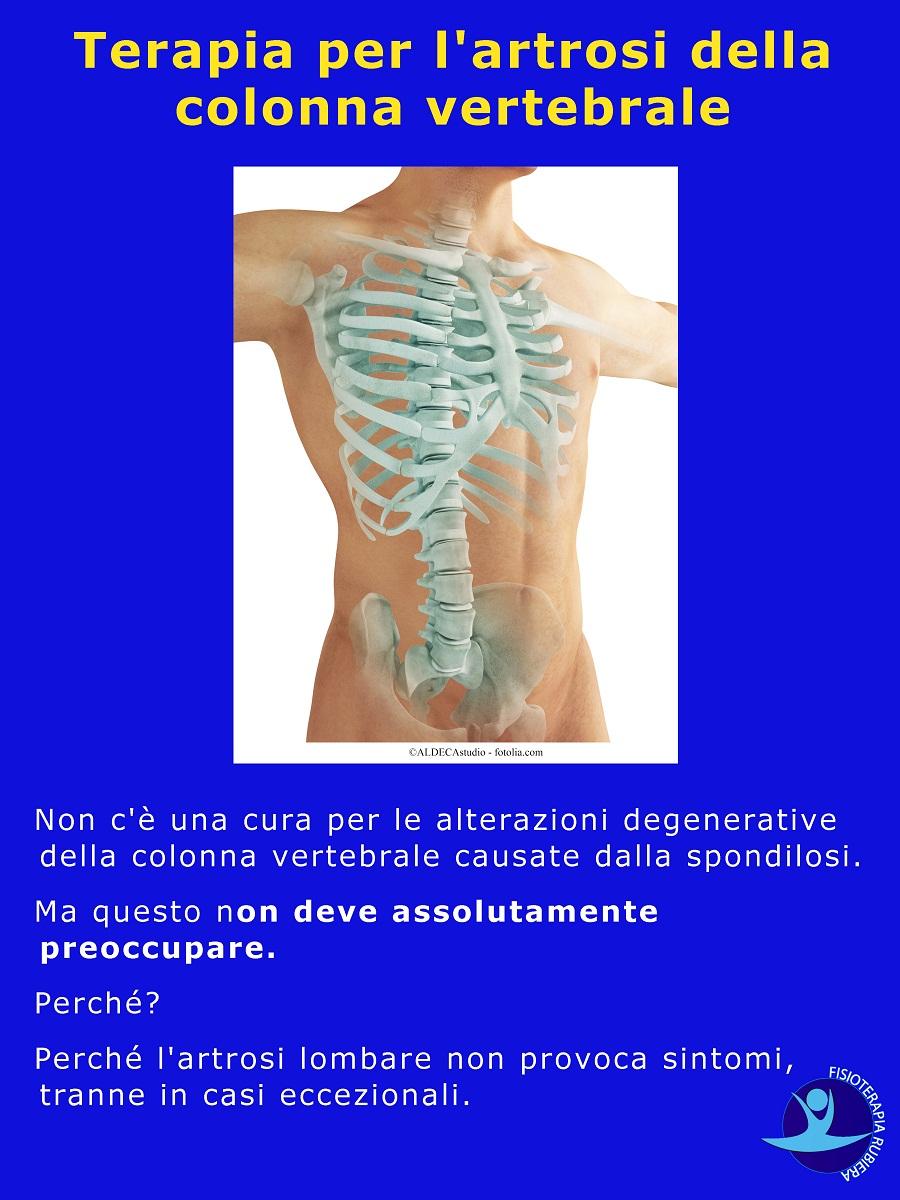 Terapia per l'artrosi della colonna vertebrale