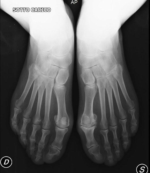 radiografia,piede