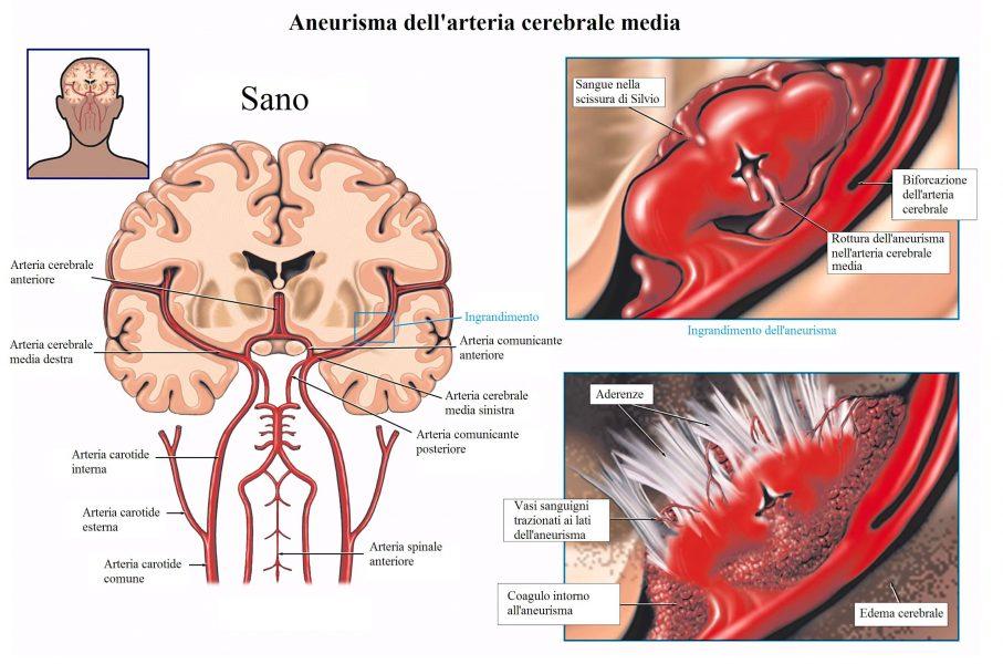 Aneurisma cerebrale,edema,aderenze,scissura rolando