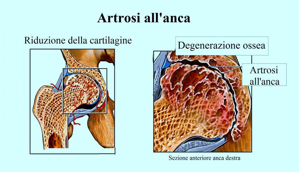 Artrosi all'anca,dolore,inguine