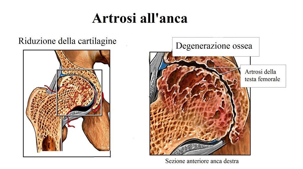 Artrosi all'anca,cartilagine,dolore,inguine