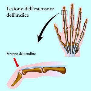 Lesione,rottura,strappo,tendine,estensore,dita,mano,gonfiore,dolore